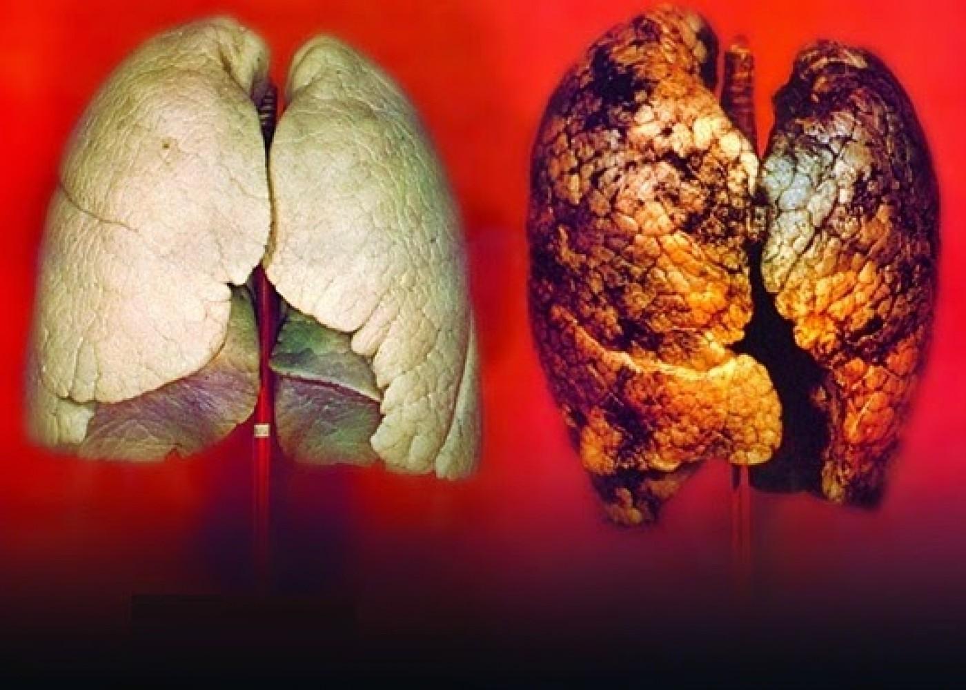 Картинки болезнь от курения